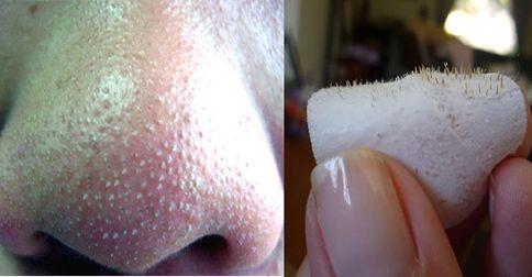Aprenda como remover os pontinhos pretos e cravos do rosto utilizando essa receita caseira super fác...