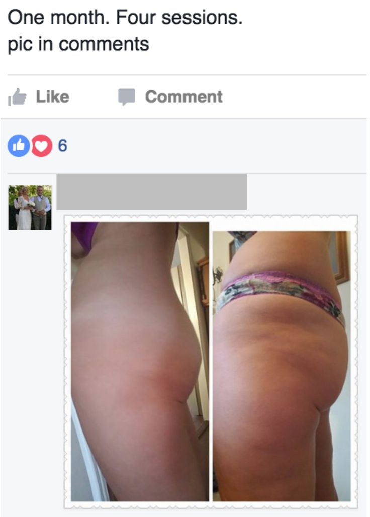 """Distorted fascia is what causes the look of """"#cellulite"""" – dimples and lumps that push through the tight adhesions causing the bumpy skin we all abhor. The #FasciaBlaster breaks THROUGH the fascia to loosen and restore it, rendering your skin smooth, healthy & """"cellulite free"""" within a few weeks of FasciaBlasting. You'll see results IMMEDIATELY as blood rushes to your skin increasing your circulation, stimulating your muscle fibers & smoothing out that crumpled, lumpy fascia. It's…"""
