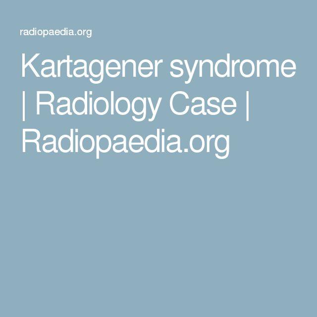 Kartagener syndrome | Radiology Case | Radiopaedia.org