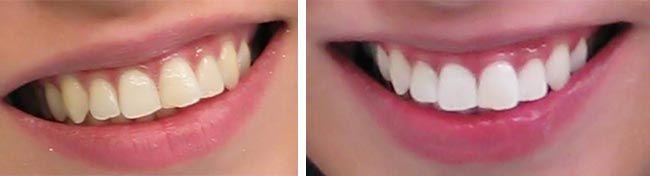 Λεύκανση δοντιών με φυσικούς τρόπους!