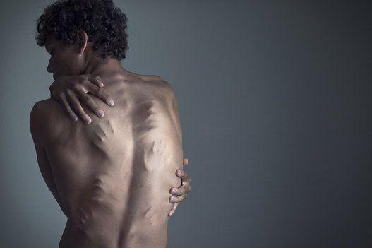Christian Hopkins discute a depressão em ensaio fotográfico