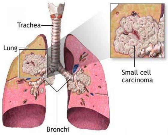 Η ουσία που θανατώνει το 90% των καρκινικών κυττάρων