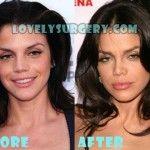 Vanessa Ferlito Plastic Surgery