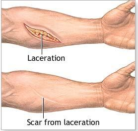 scar tissue from surgery create muscle adhesions - roman paradigm