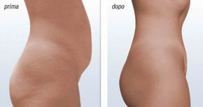Se stai cercando di perdere peso, cercando di disfarti del grasso addominale, questo eccellente rimedio [Leggi Tutto...]