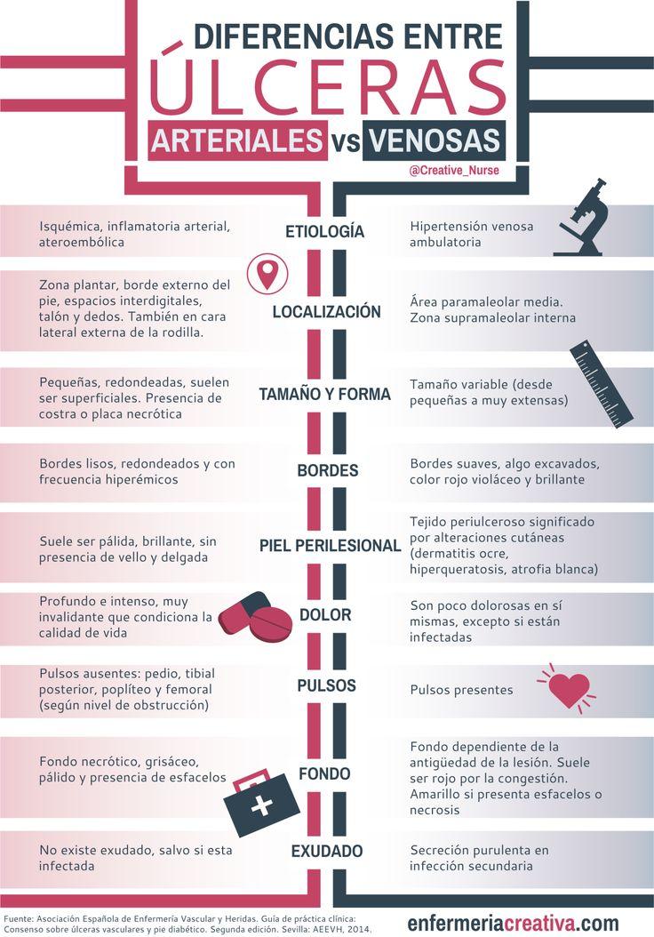 Diferencias entre úlceras arteriales y venosas by enfermeriacreativa.com #enfermeria