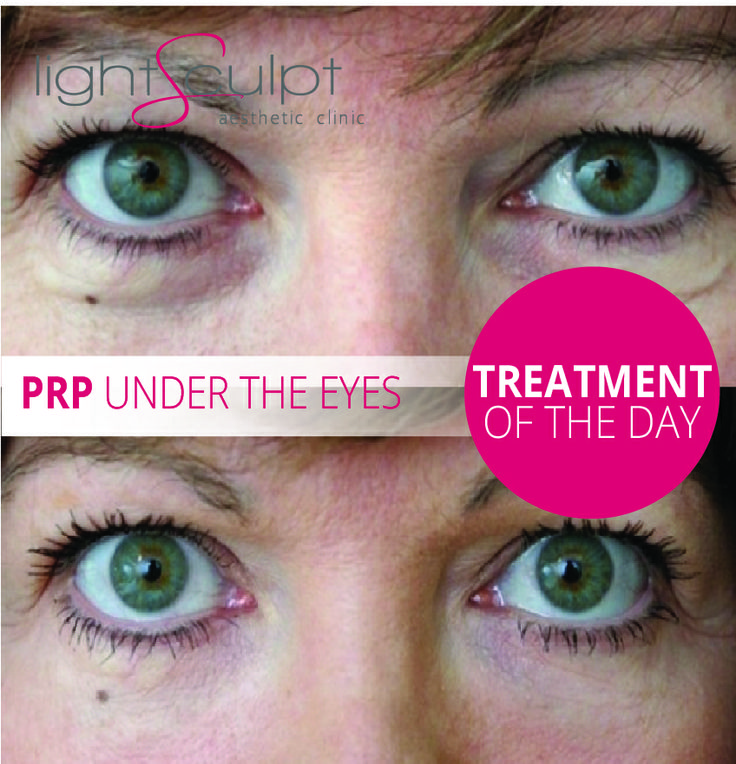 PRP Under eyes | Treatment Of The Day | Bellezza