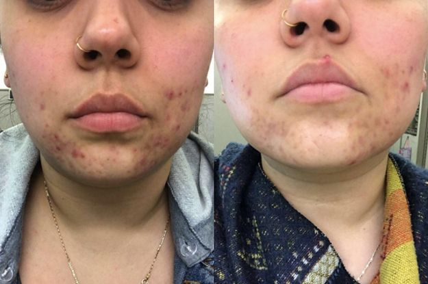 dce49d04e1539b36ab3a8aba5af4cc14 - How To Get Rid Of Acne You Picked At