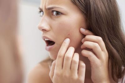How do you prevent pimples? #beautytips #homereme…