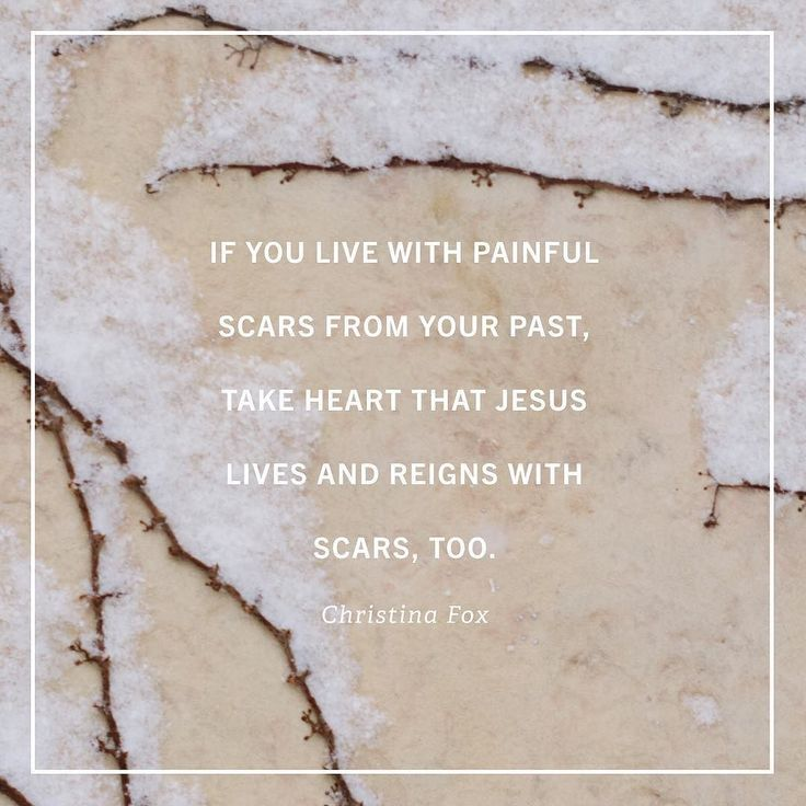 If you live with painful scars from your past, take heart that Jesus lives a reigns with scars, too. ~Christina Fox