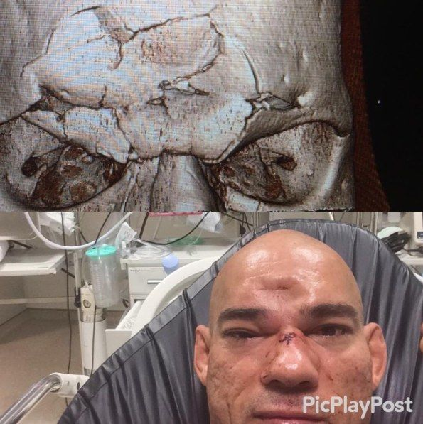 Evangelista Cyborg Suffers Fractured Skull from Michael Page's Flying Knee
