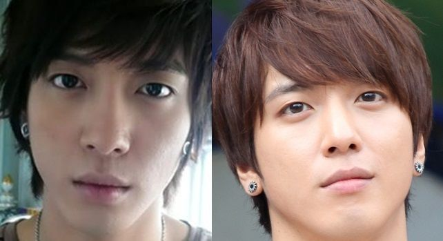 Did Jung Yong-Hwa CNBlue Had Plastic Surgery?