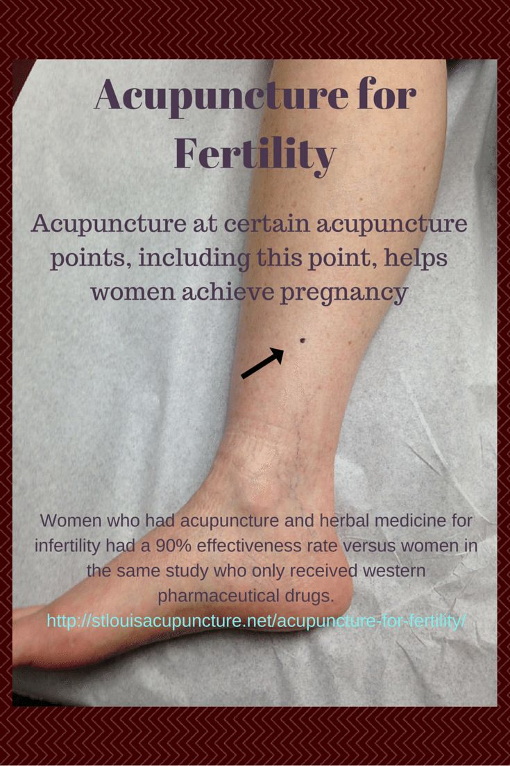Acupuncture for Fertility  http://stlouisacupuncture.net/acupuncture-for-fertility/