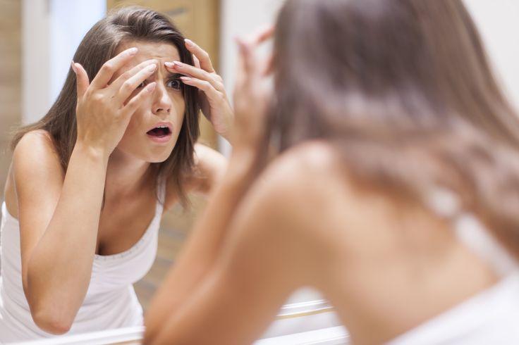Acne tardia: tratamentos para deixar as espinhas no passado de vez