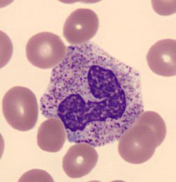 Toxic granulation of neutrophils. This is a sign of ... Vacuolization Of Neutrophils