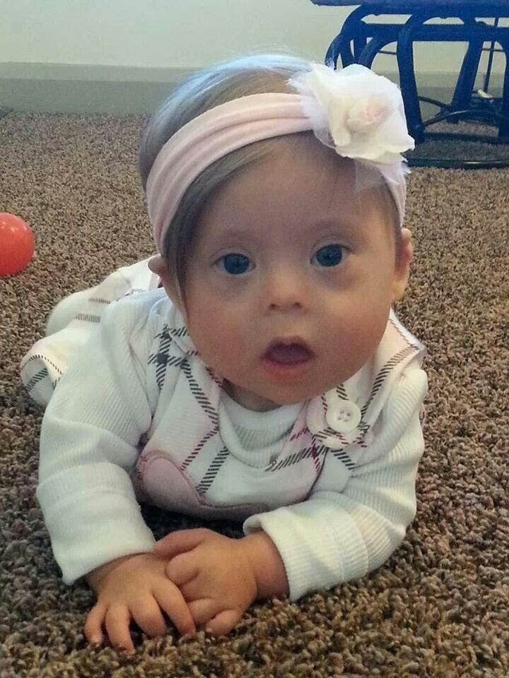 7 month old Kloe looks like a little angel. ♥ Down syndrome awareness
