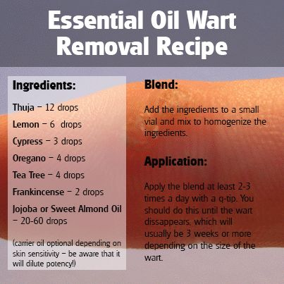 Thuja Essential Oil Wart Removal Blend