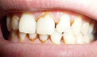 1 skvelý spôsob, ako sa zbaviť zubného kameňa doma! Zubári o ňom, ani len netušia | MegaZdravie.sk