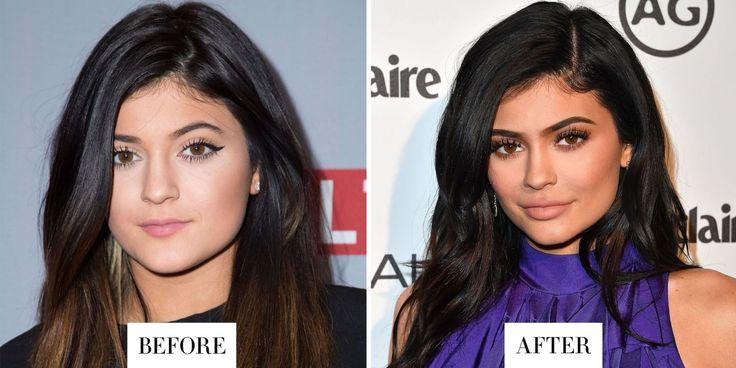 Le sopracciglia di Kylie Jenner cambiano di minuto in minuto (il trucco sta nel modo in cui applica il make-up sulla fronte). Qui è quando ha deciso di allungarle agli angoli. Il cambiamento ha inciso anche sulla forma del viso.
