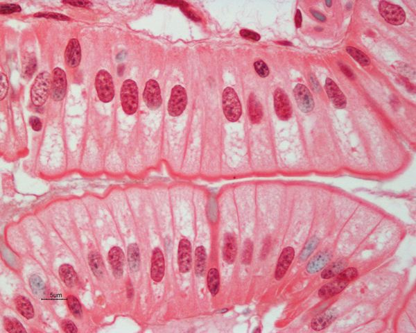 Simple columnar epithelial