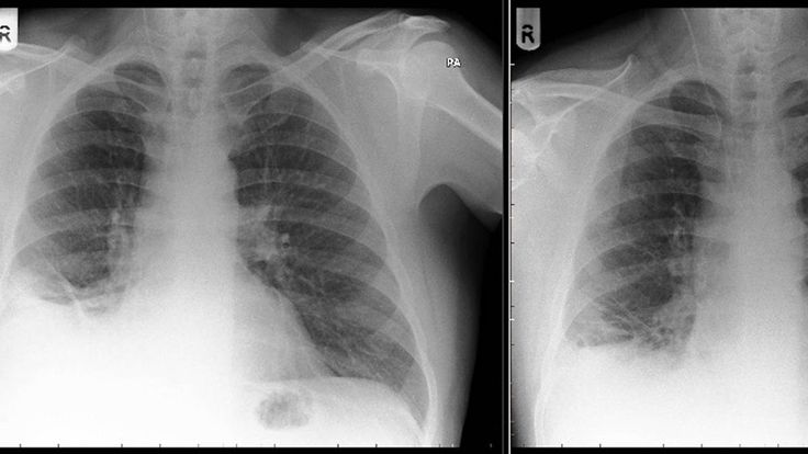 http://ift.tt/2xIg8hP Kurioser Fall: Ärzte wollen Tumor aus Lunge operieren finden dort aber Playmobil-Spielzeug #story