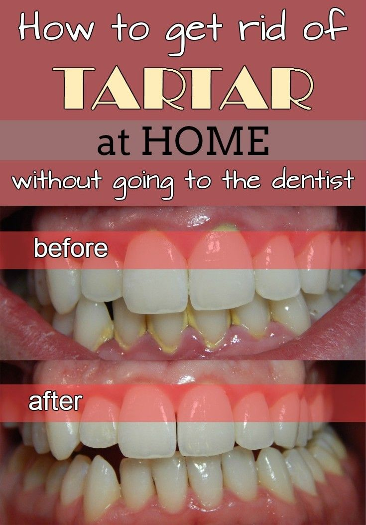 How to get rid of tartar at home without going to the dentist - TheBeautyMania.net