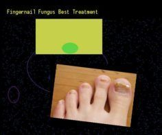 Fingernail fungus best treatment  Nail Fungus Remedy. You have nothing to lose!….