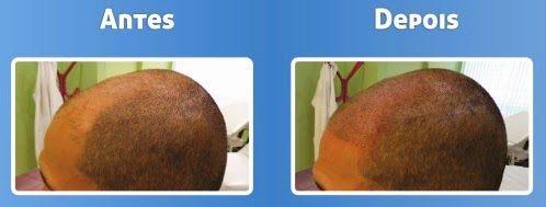 Chic e Fashion: Micropigmentação de couro cabeludo