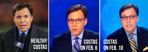 Bob Costas' eyes in various states of redness~NBC Olympics anchor Bob Costas' eye infection looks a whole lot worse~Unlike Thursday, Costas did not immediately reference his condition on air. It appears that he'd prefer to focus on the Olympic action, even if his eyes are sure to remain a topic of conversation for as long as they continue to look this way. Social media reaction was swift. After days of jokes, including the suggestion that Costas wear an NBC-branded eyepatch, Click to read…