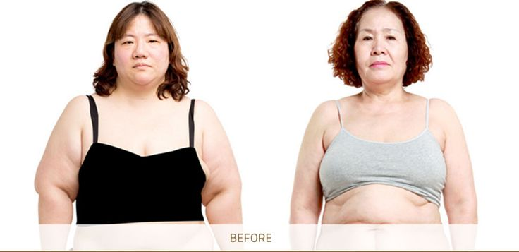 tummy tuck  Tummy tuck procedure will remove the excess skin and fat, and tighten the loose abdominal muscles.