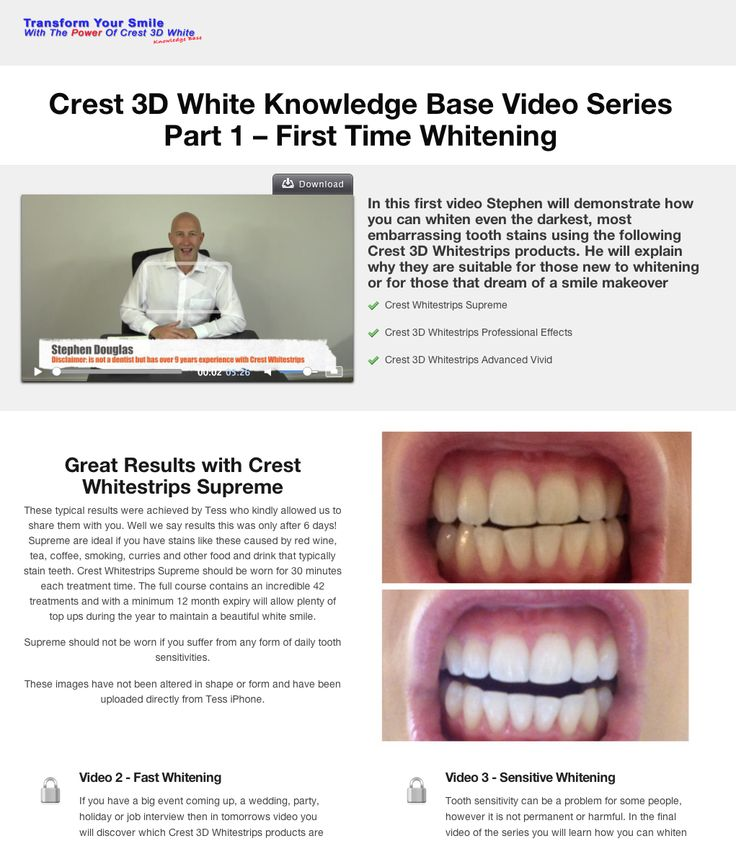 In this short video Stephen reveals the Crest 3D Whitestrips products that are suitable for those new to whitening or those who require a Hollywood Smile Makeover - http://www.crestwhitestrips.co.uk/crest-blog/crest-whitening-strips-product-suite/