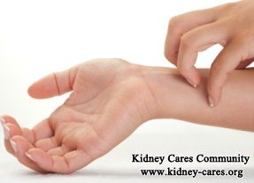 It is common that kidney failure patients treated with peritoneal dialysis complain of skin itching. As itchy skin not only affects these patients' life quality but also reveals some severe underlying disorders, most of them urgently want to make clear why peritoneal dialysis causes itching and the effective treatment. http://www.kidney-cares.org/dialysis/1613.html