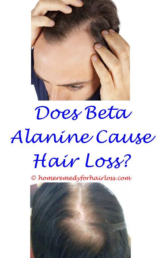 sisterlocks and hair loss - high frequency hearing loss hair cells.kalonji oil prevents hair loss excessive hair loss in cats braids cause hair loss men 6018398742