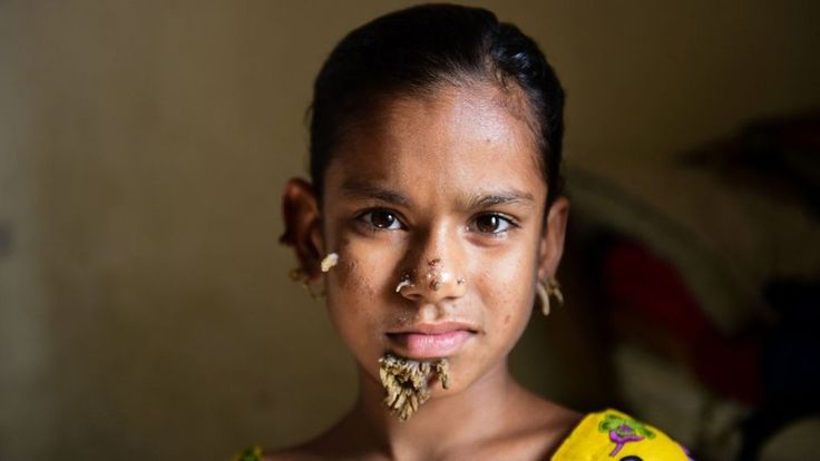 Bangladeshi Sahana Khatun, 10, developed the first bark-like warts on her face four months ago.