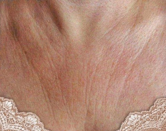 Neck wrinkles causes