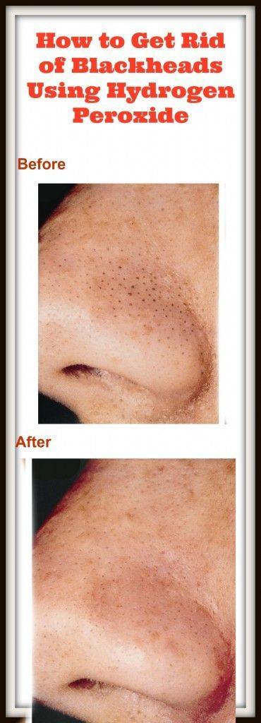 Get rid of blackheads PERMANENTLY with this super …