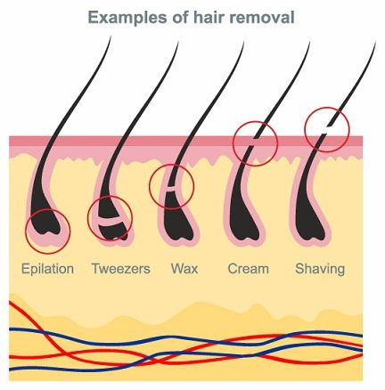 How To Get Rid Of Facial Hair Naturally at Home   Styles Of Living