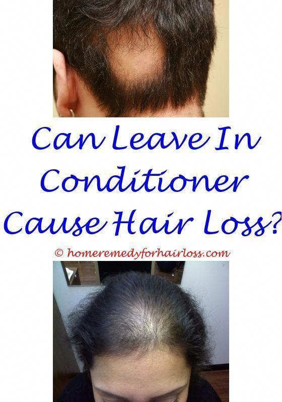 Male Hair Loss Cure 2015 Regenepure Dr Hair Loss Wella Hair Loss Saw Palmetto 450 Mg Hair Loss Mastrubation Causes Hair Loss 6992259491 Hairlosscauses