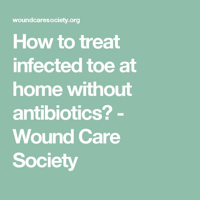 How to treat infected toe at home without antibiotics? - Wound Care Society