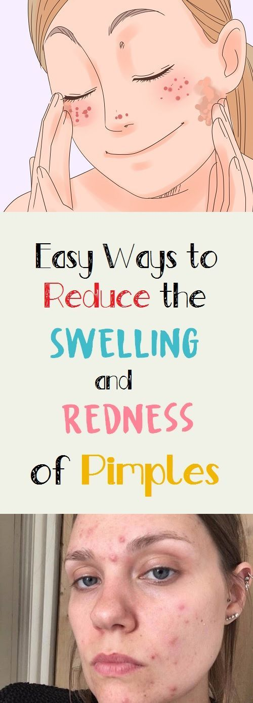 Easy Ways to Reduce the Swelling and Redness of Pimples