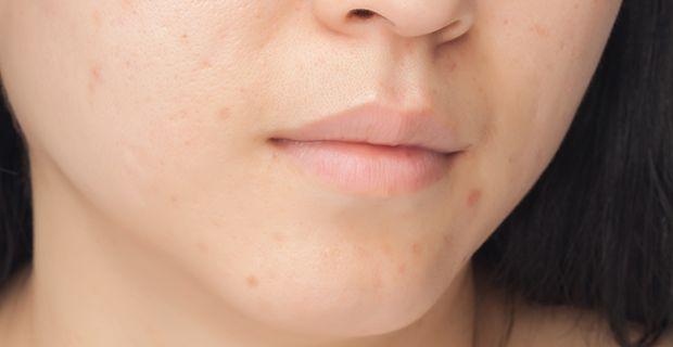 Hidradentis suppurativa eli HS-tauti on krooninen tulehduksellinen sairaus, joka aiheuttaa kivuliaita ihomuutoksia yleisimmin kainaloihin, nivusalueelle ja rintojen alle. Ihotautilääkäri voi tunnis