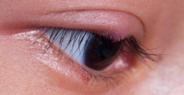 Υγεία - Το κριθαράκι στο μάτι, γνωστό και ως κριθή, εμφανίζεται λόγω λοίμωξης από το βακτήριο του σταφυλόκοκκου. Εκδηλώνεται σαν ένα μικρό εξάνθημα επάνω στο βλέφα