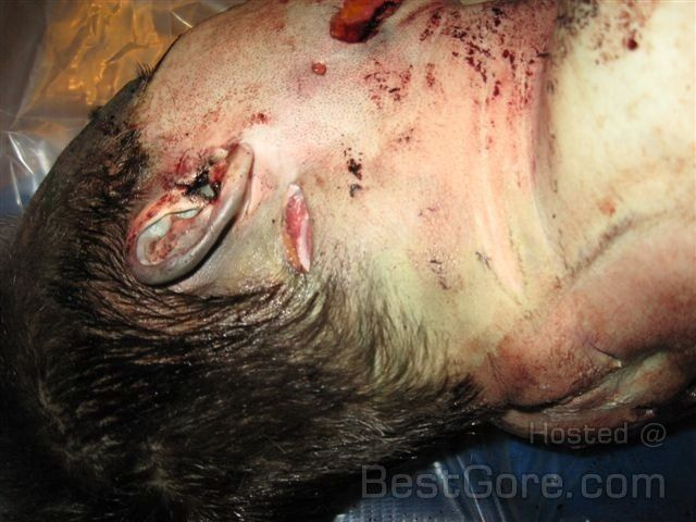 Travis Alexander stab wounds