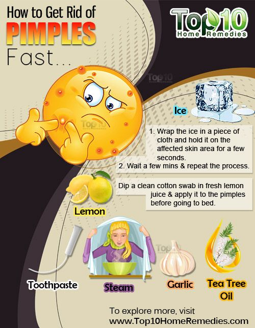 Prev post1 of 3Next Pimples are a normal skin condition that affect many people. Pimples are an inflammation of the skin in which the sebaceous glands (oil glands) become infected with bacteria, swell up, and fill with pus. Excess sebum secretion by the oil glands is the primary cause behind this problem. Pimples generally occur