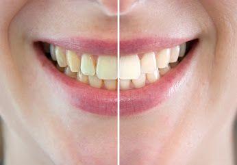 #Wybielanie jest procesem, na który składają się także poprzedzające go #scaling i #piaskowanie – przygotowujące zęby do zabiegu.  Dopiero po dokładnym oczyszczeniu uzębienia, sprawdzeniu jego stanu, zakwalifikowaniu pacjenta do zabiegu, a następnie określeniu koloru zębów i poinformowaniu o spodziewanym efekcie – #stomatolog przystępuje do #wybielania .
