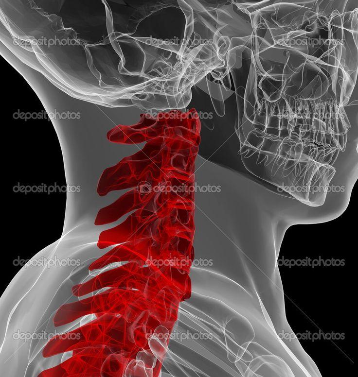 x-ray Blick auf menschliche Halswirbelsäule - Stockdatei: 31393907