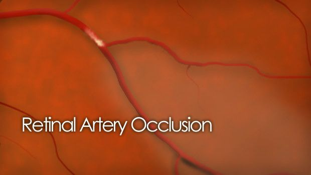"""drug implant"" spine | Vitrectomy Retinal pucker Retina surgery video"