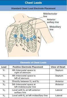 Chest Leads and Electrodes Placement