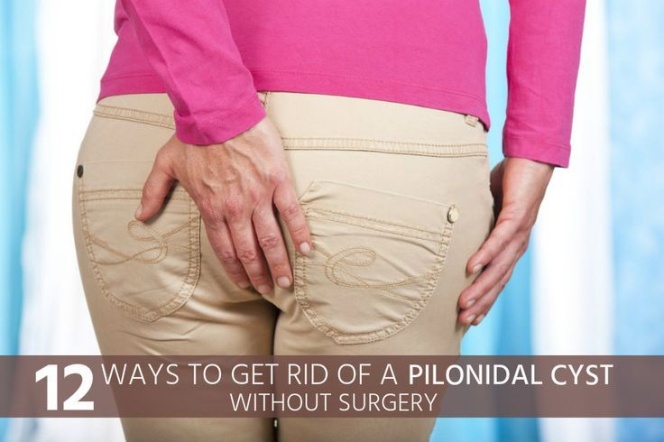 12 Ways to Get Rid of a Pilonidal Cyst Without Surgery