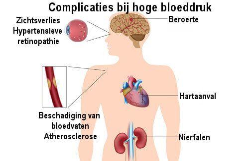 Hoge bloeddruk wordt geassocieerd met hart- en vaatziekten en is de meest voorkomende doodsoorzaak ter wereld. Behandel het met natuurlijke middelen.